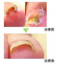 児島医院 長野県 整形外科 リハビリテーション科  巻き爪治療