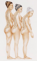 児島医院 長野市 整形外科 リハビリテーション科 骨粗しょう症の治療 インフルエンザ予防接種 肩こり 首の痛み 腰痛 骨粗しょう症のイラスト